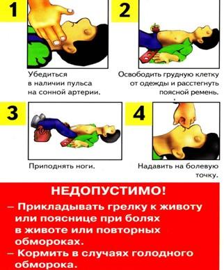 обморок 1-4