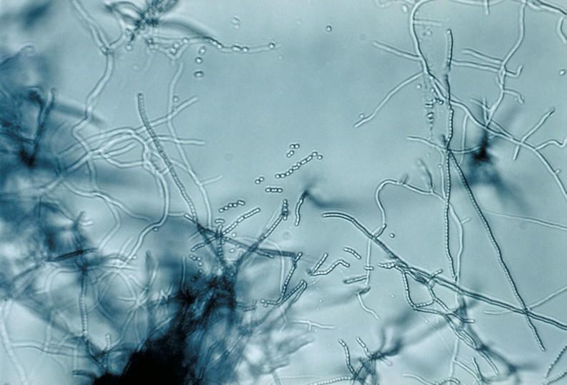 Кариесогенный фото