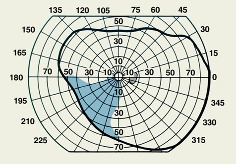 Схема поля зрения, полученная